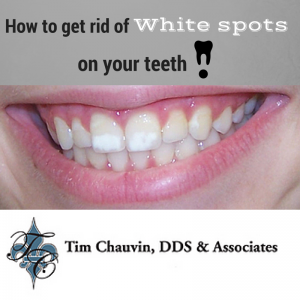 White patches on teeth from whitening