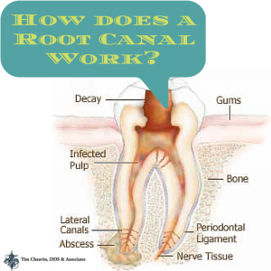 How Does a Root Canal Work-