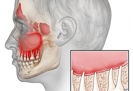 Can a sinus infection be caused by a tooth? - Dr Chauvin