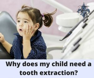Why does my child need a tooth extraction- dr chauvin lafayette la dentist