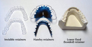 dr chauvin lafayette la dentist keep teeth straight after braces