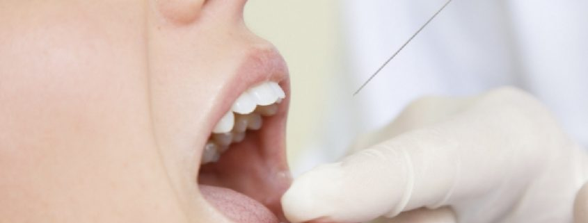 lafayette dentist dr chauvin 5 reasons you cant get numb at the dentist
