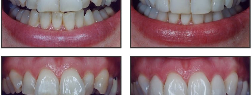 what-is-tooth-contouring dr chauvin lafayette la dentist