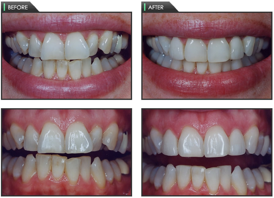 What Is Tooth Contouring Dr Chauvin