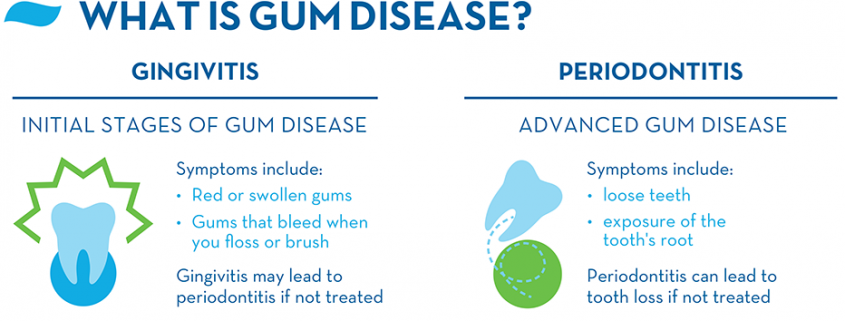 what-is-gingivitis-and-periodontitis