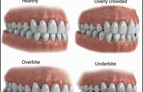 why is your bite important dr chauvin lafayette dentist