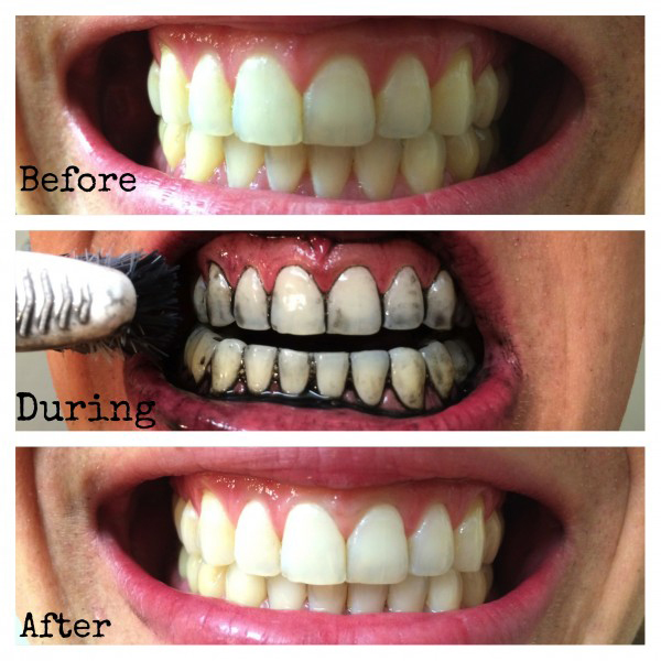 How Does Activated Charcoal Whiten Teeth Dr Chauvin