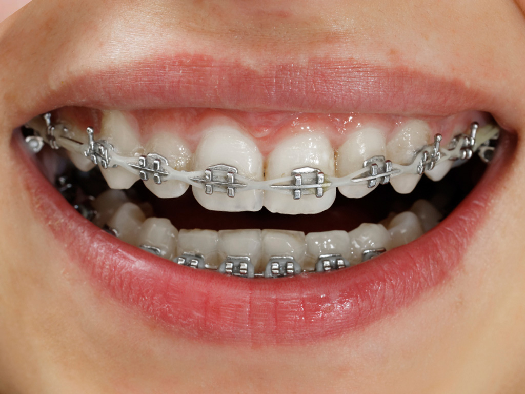 Can You Whiten Your Teeth With Braces Dr Chauvin